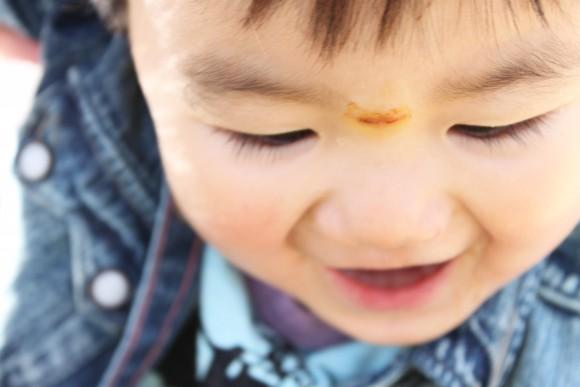 子供、顔、傷、裂傷、ぱっくり