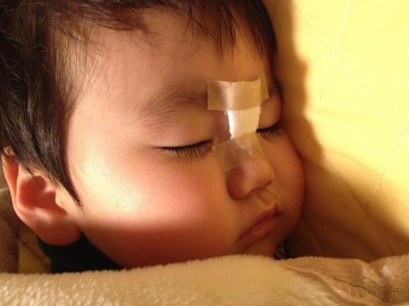 子供、顔、傷、ぱっくり、裂傷