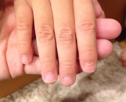 手足口病、子供、爪、爪甲脱落症